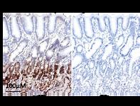 Normal Pyloric Epithelium