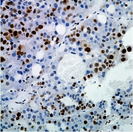 proliferation: ki67 staining in tumor xenograft