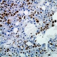 proliferation: ki67 staining in tumor xenograft