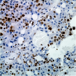 Antibody Profiling