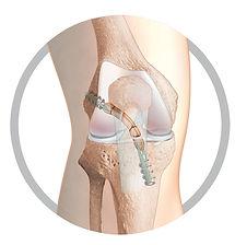 tape screw knee surgery.jpg