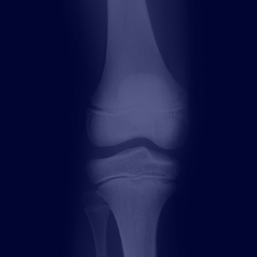 Knee Replacements & Knee Surgery Dr Jason Beer