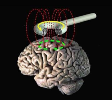 """""""Стимулятор мозга"""" который нужно носить может ускорить реабилитацию после инсульта"""