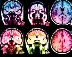 Новый тест сможет предсказать восстановление сознания после черепно-мозговой травмы