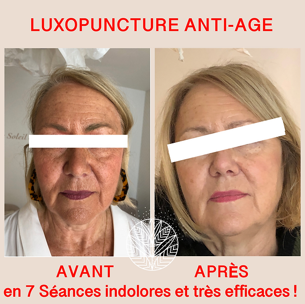 Mme Roux anti-age.png