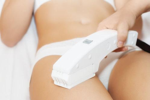 3D Laser Skin Tightening