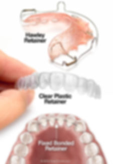 types-of-orthodontic-retainers.jpg
