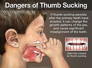 dangers-of-thumb-sucking.jpg
