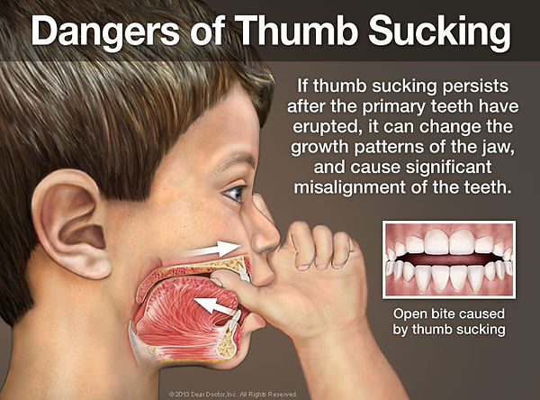 dangers-of-thumb-sucking.jpg