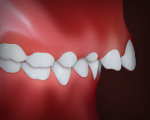 Upper_Front_Teeth_Protrusion.png