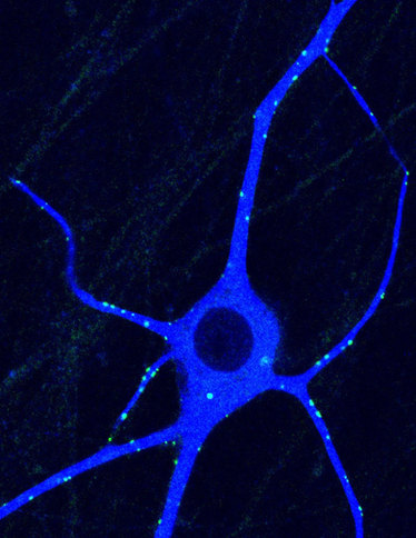 Sympathetic neuron.jpg