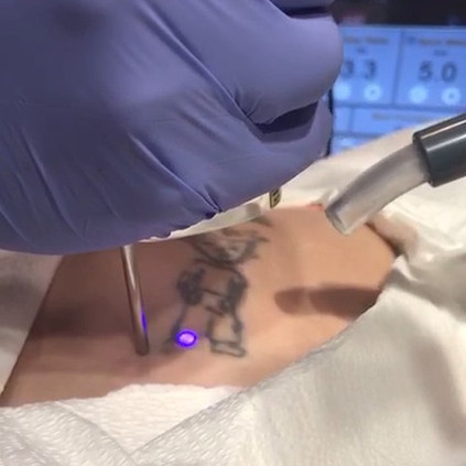 Second Treatment for a #TattooRemoval session! It's as simple as that! You no longer have to live with #TattooRegret, book your appointment_