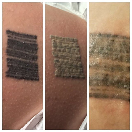 Left pic is the Before, the middle pic is Immediately after treatment and the Last pic is later that evening.jpg