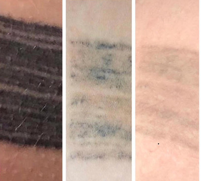 Before, after 2 treatmetns , and after 3 treatments