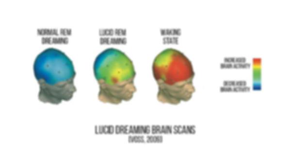 brain-activity-during-sleep.jpg
