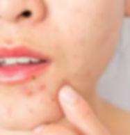 adult acne.jpg
