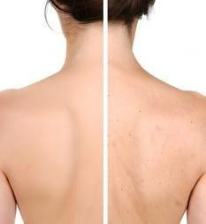 Back Acne Therapy