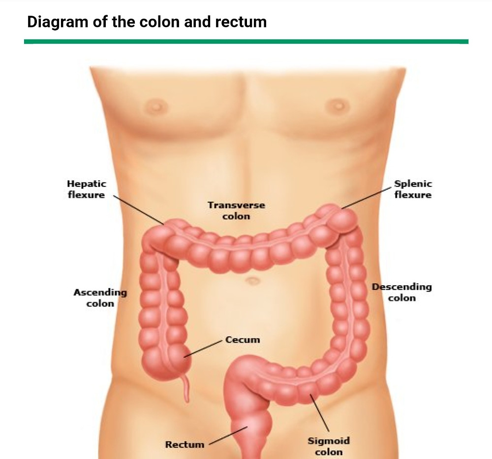 Ulcerative Colitis causes bleeding. It affects large intestine/Colon-Consult Gastroenterologist for treatment