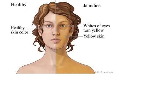 Jaundice-Yellow eyes/Skin and Urine. Consult your Gastroenterologist