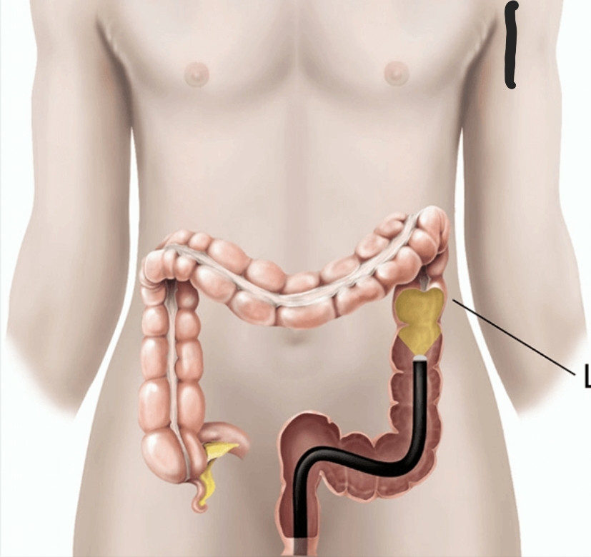 Flexible Sigmoidoscopy examines your Lower Colon-Carried by aGastroenterologist.