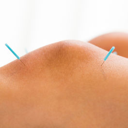 dylan_stein_knee_pain_acupuncture_nyc.jp