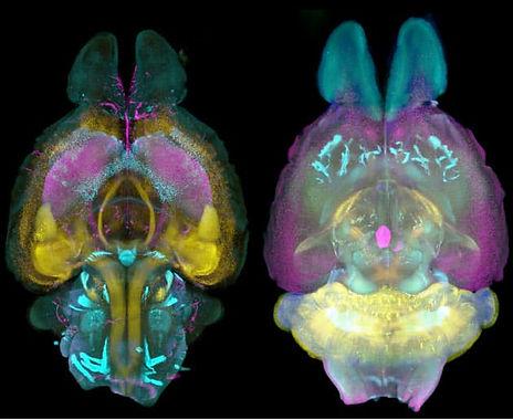 transparent brain.jpg