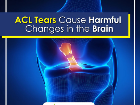 Study Say ACL Tears Cause Harmful Changes in the Brain