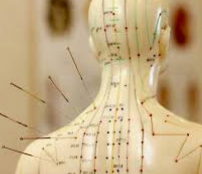 Acupuncture as Adjunctive Therapy for Chronic Stable Angina: A Randomized Clinical Trial