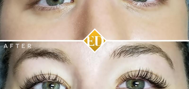 Eye Deux