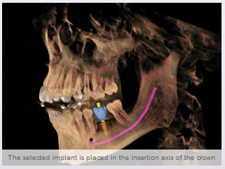 3D implant positioning
