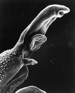 800px-Schistosome_Parasite_SEM.jpg