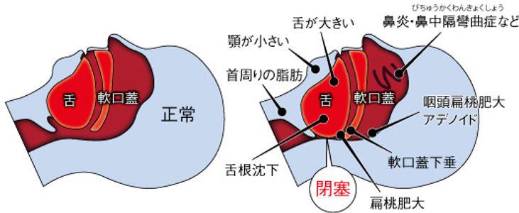 無呼吸 呼吸器学会 図.jpg