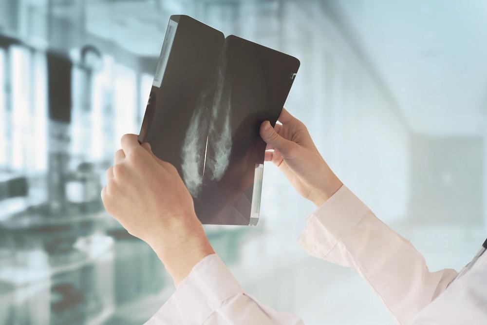 โรคมะเร็งปอด (Lung Cancer) ไม่สูบบุหรี่ก็เป็นได้