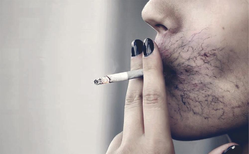 ภัยของการสูบบุหรี่
