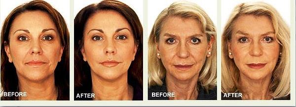 Clinica Dr. Dana in Marbella & Calpe - Botox, Filler, acido hyaluronico