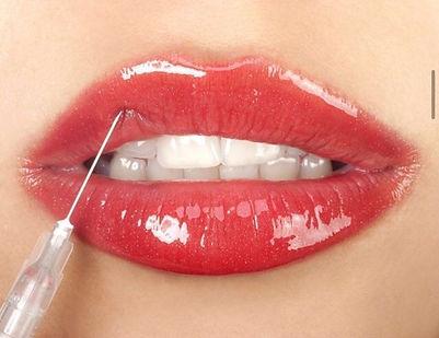 Lips treatment Clinica Dr.Dana Marbella