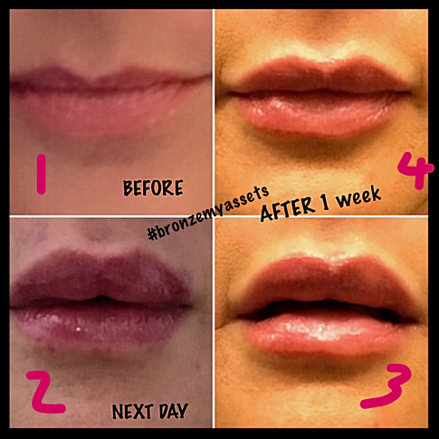 Juvederm by Dr. Fearmonti