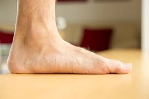 flatfoot.jpg