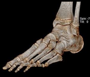 CT Foot.jpg