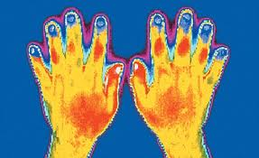 Focus on... Raynaud's Syndrome