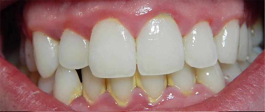 placa-dental