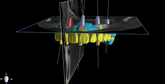 colocacion-digital-implantes