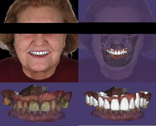 digital-smile-desing