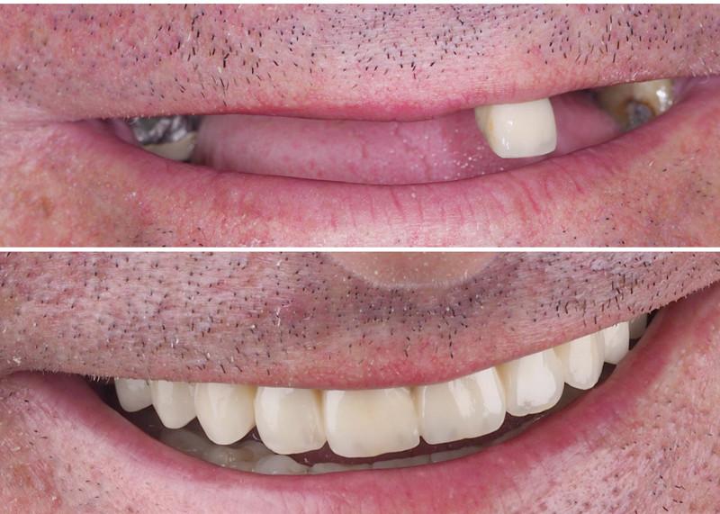 antes-despues-implantes