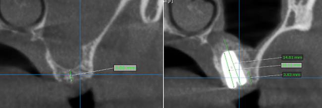 regeneración-PRGF-y-hueso-liofilizado