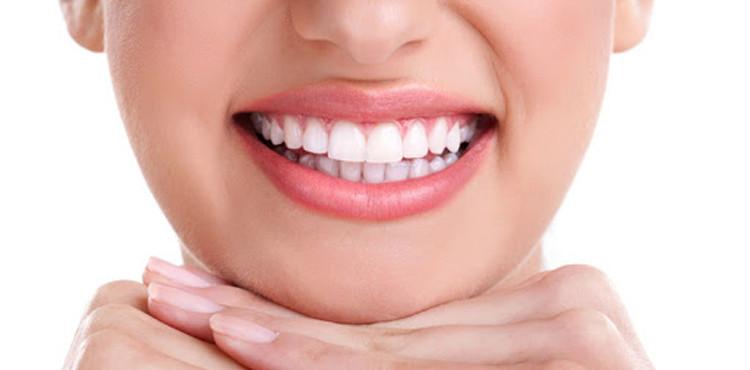 sobremordida-ortodoncia