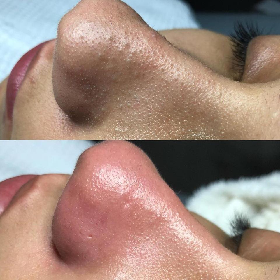 Deep Pore Cleansing Facial