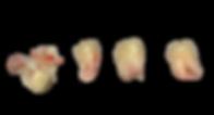 Éxodoncia de cordales