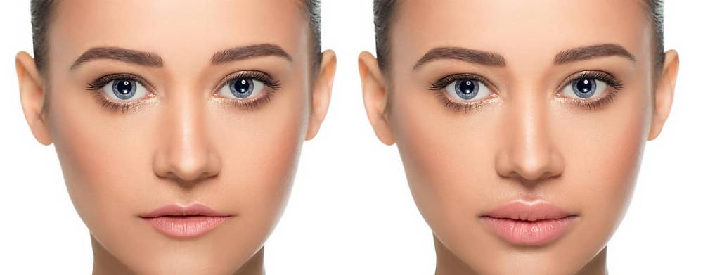 Dermal Filler Lip Augmentation Effect Before After