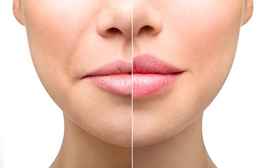 Lip Fillers Plump Lips Happy Smile Dubai Wrinkle